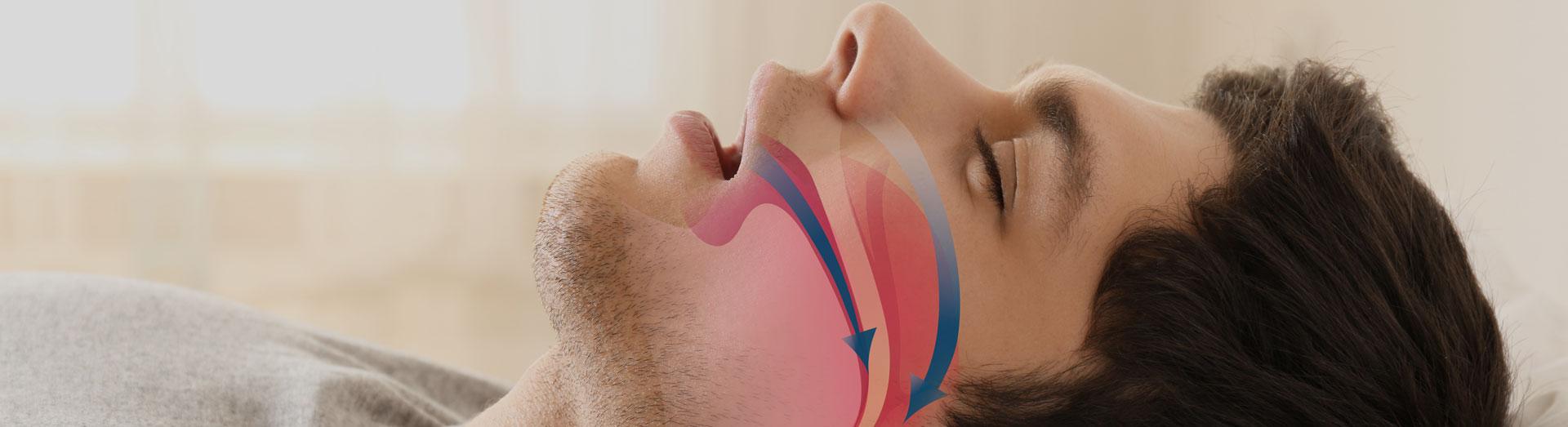 Illustration of man suffering from sleep apnea