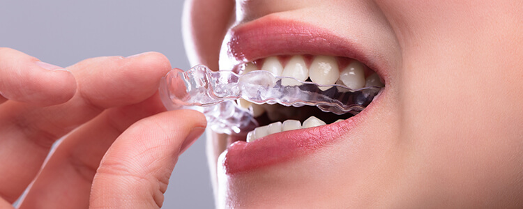 What Does the Invisalign Treatment Procedure in Glen Mills, PA, Area